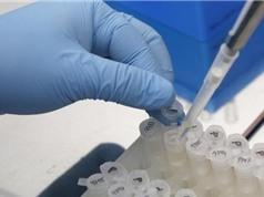 Vắcxin phòng virus Zika sẽ được thử trên người trong năm 2016