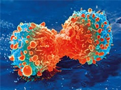 Chữa ung thư - hướng mới của vắcxin