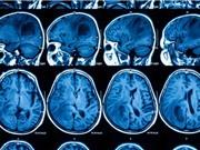 Phương pháp mới điều trị ung thư não bằng các tế bào da