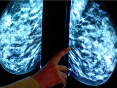 Nếu muốn sống, đừng giết tế bào ung thư?