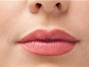 Năm dấu hiệu trên môi bạn không bao giờ nên bỏ qua