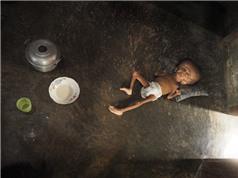 Ô nhiễm thủy ngân  đang là vấn đề toàn cầu