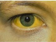 Tìm hiểu về căn bệnh sốt vàng da có tỉ lệ tử vong tới 50%