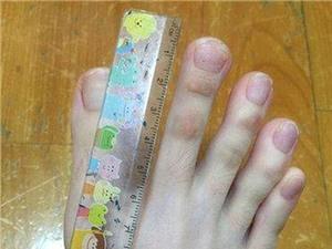 Người phụ nữ kỳ lạ với những ngón chân giống hệt ngón tay