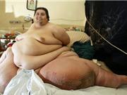 """Top 10 người có cân nặng """"khủng' nhất mọi thời đại"""