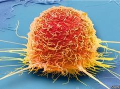 Cách làm đói tế bào ung thư không làm suy kiệt bệnh nhân