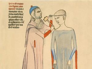 Những cách chữa bệnh thời Trung Cổ vẫn lưu hành tới nay