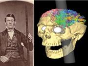 Người đàn ông biến đổi nhân cách sau khi bị cây sắt đâm xuyên đầu