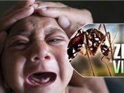 Em bé Việt Nam đầu tiên nghi mắc chứng đầu nhỏ do virus Zika
