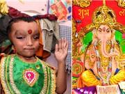 Bé trai Ấn Độ mắc quái bệnh, được tôn sùng như thần thánh