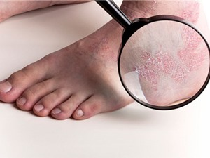 7 cách đơn giản giúp làm giảm bệnh vẩy nến