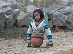 """Cuộc đời tuyệt diệu của """"cô bé bóng rổ"""" chỉ có nửa người"""