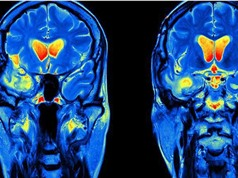 Thuốc trị sốt rét có thể chữa ung thư não