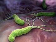 Nguyên nhân, cách phòng lây nhiễm vi khuẩn Hp