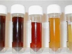 Nước tiểu thể hiện tình trạng sức khỏe con người