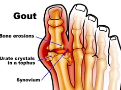 Nguyên nhân, cách phòng tránh bệnh Gout