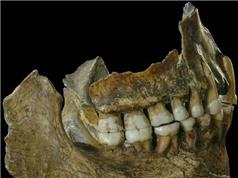 """SỐC: Người cổ đại tìm ra """"Aspirin"""" 50.000 năm trước Alexander Fleming"""
