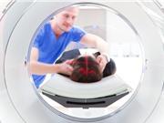 Hình ảnh hạt nhân  phát hiện ung thư ở cấp tế bào