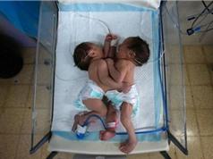 Cặp song sinh người Palestine dính liền chung tim