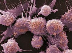 Dấu hiệu cảnh báo ung thư tuyến tiền liệt