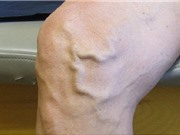 Nguyên nhân, triệu chứng và cách phòng ngừa bệnh suy giãn tính mạch chân