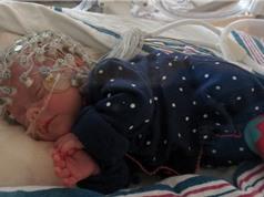 Động chạm sớm trong đời có ích cho não trẻ sinh non
