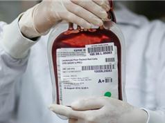Tế bào gốc bất tử giúp xua tan nỗi lo về nguồn cung máu