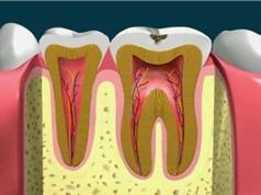 Clip: Quá trình lấy tủy răng diễn ra như thế nào?