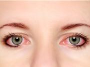 Người bệnh đau mắt đỏ kiêng ăn gì?