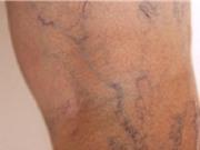 Lời khuyên giúp bạn phòng ngừa bệnh suy giãn tĩnh mạch chân