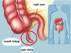 Lời khuyên dành cho bệnh nhân sau khi mổ ruột thừa