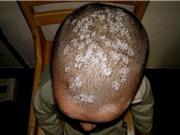 Những điều cần biết về bệnh nấm tóc