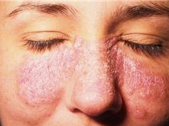 Lupus ban đỏ hệ thống có nguy hiểm không?