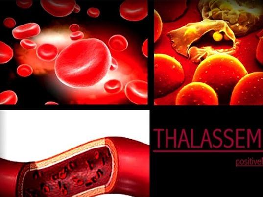 Nhận biết căn bệnh tan máu bẩm sinh