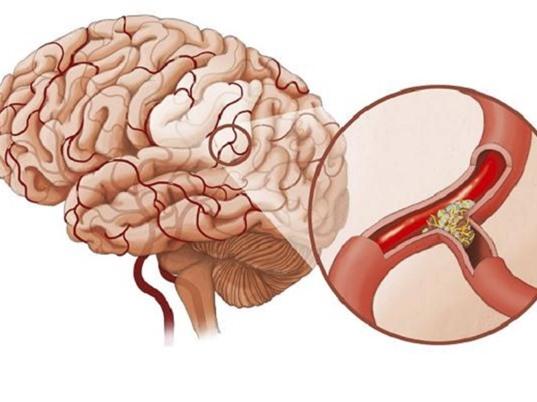 Phát hiện và xử trí khi người thân bị tai biến mạch máu não