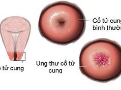 Dấu hiệu sớm của ung thư cổ tử cung