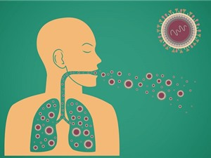 Dấu hiệu nhận biết bệnh lao và cách phòng tránh