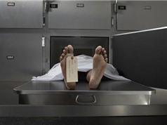 Phương pháp giúp khám nghiệm tử thi mà không cần phải mổ