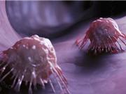 'Tàu ngầm siêu nhỏ' mang thuốc diệt tế bào ung thư