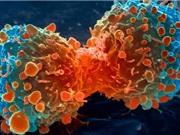 """Tế bào ung thư di căn vì """"chật chội"""""""