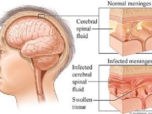 Nguyên nhân, triệu chứng và cách điều trị viêm não Nhật Bản