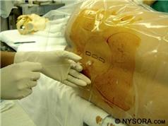Tác dụng phụ của phương pháp gây tê tủy sống khi mổ sinh