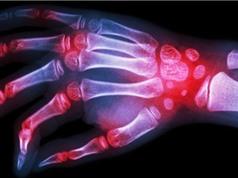 Con người bị viêm khớp vì …đột biến gen thời tiền sử
