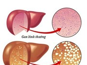 Bật mí 10 triệu chứng gan nhiễm mỡ và dấu hiệu bệnh gan