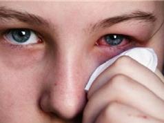 Mùa mưa cẩn trọng với bệnh đau mắt đỏ