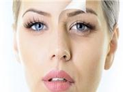 Clip: Bí quyết loại bỏ quầng thâm và bọng mắt