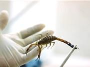 Clip: Chế tạo thành công máy hút nọc độc bọ cạp ở Morocco