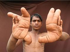 """Cậu bé bị dân làng gọi là """"quỷ dữ"""" vì đôi tay to bất thường"""