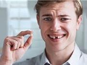 Vì sao răng chưa già đã rụng?