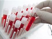 Phương pháp thử máu mới phát hiện ung thư trước khi có triệu chứng